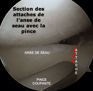 section de l'attache  de l'anse du menisque