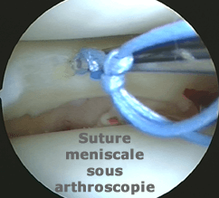 suture meniscale sous arthroscopie